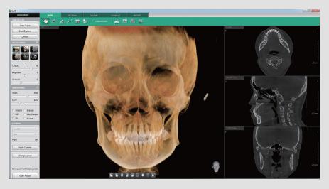 i3d-premium x-ray
